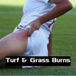 Goalkeeper Grass or Turf Burns