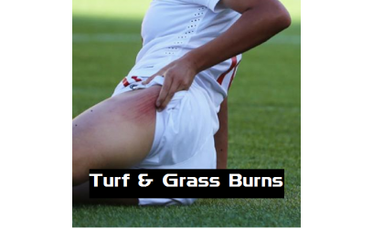Goalkeeper Grass or Turf Burns